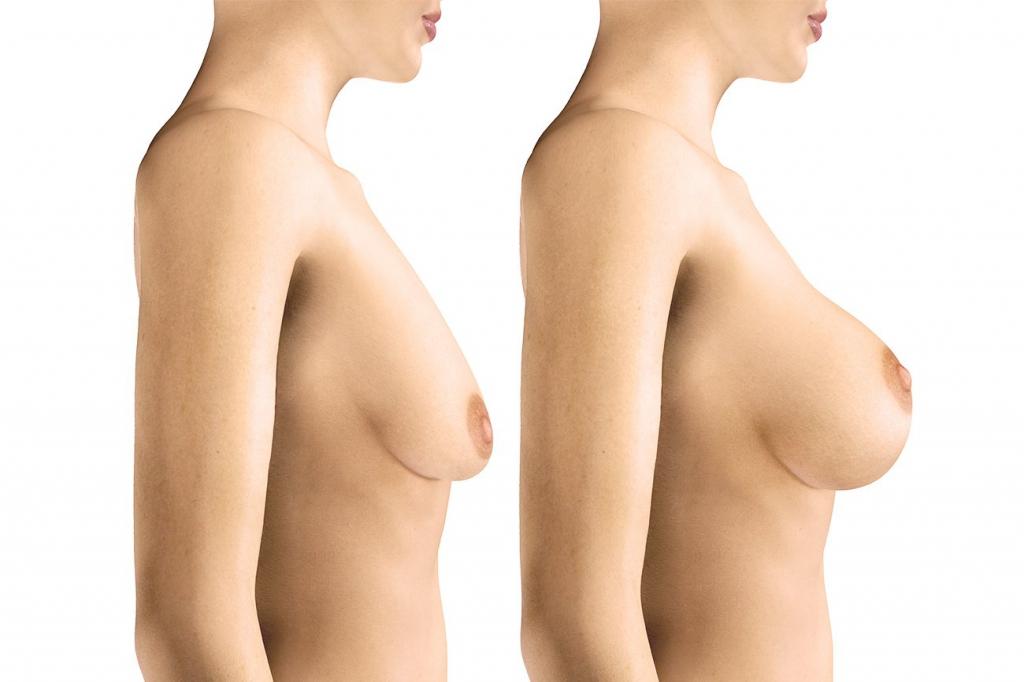 Les Prothèses mammaires