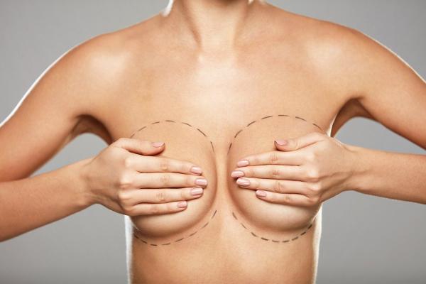 Correction de la ptose mammaire à Lille