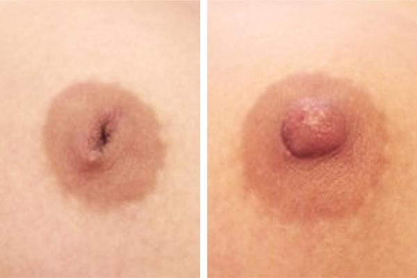 Chirurgie pour la correction des mamelons ombiliqués à Lille