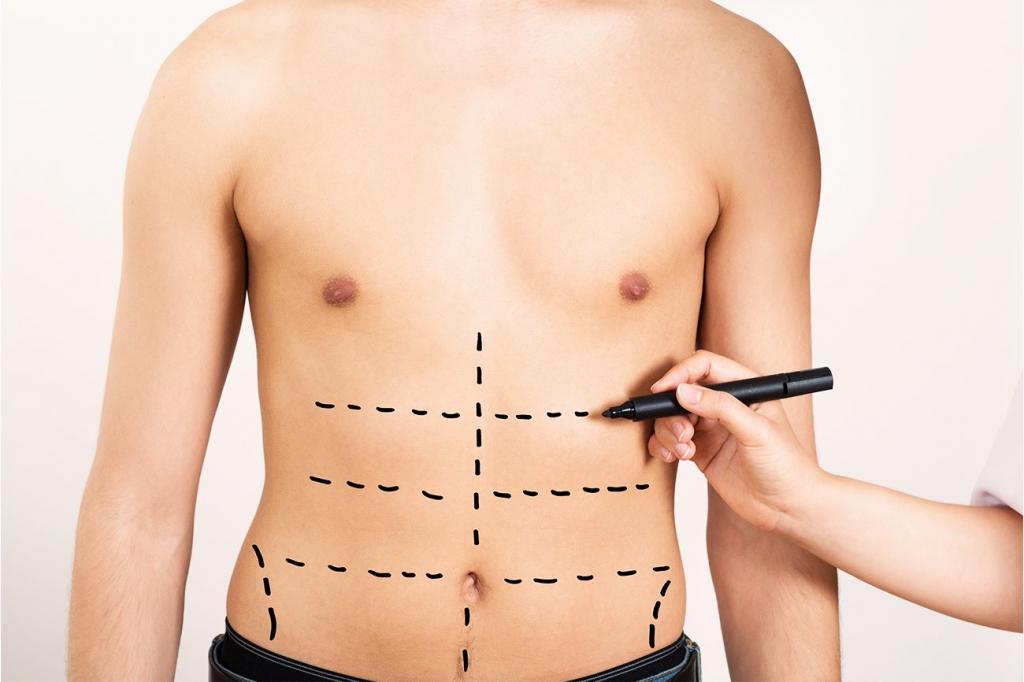 L'abdominal Etching