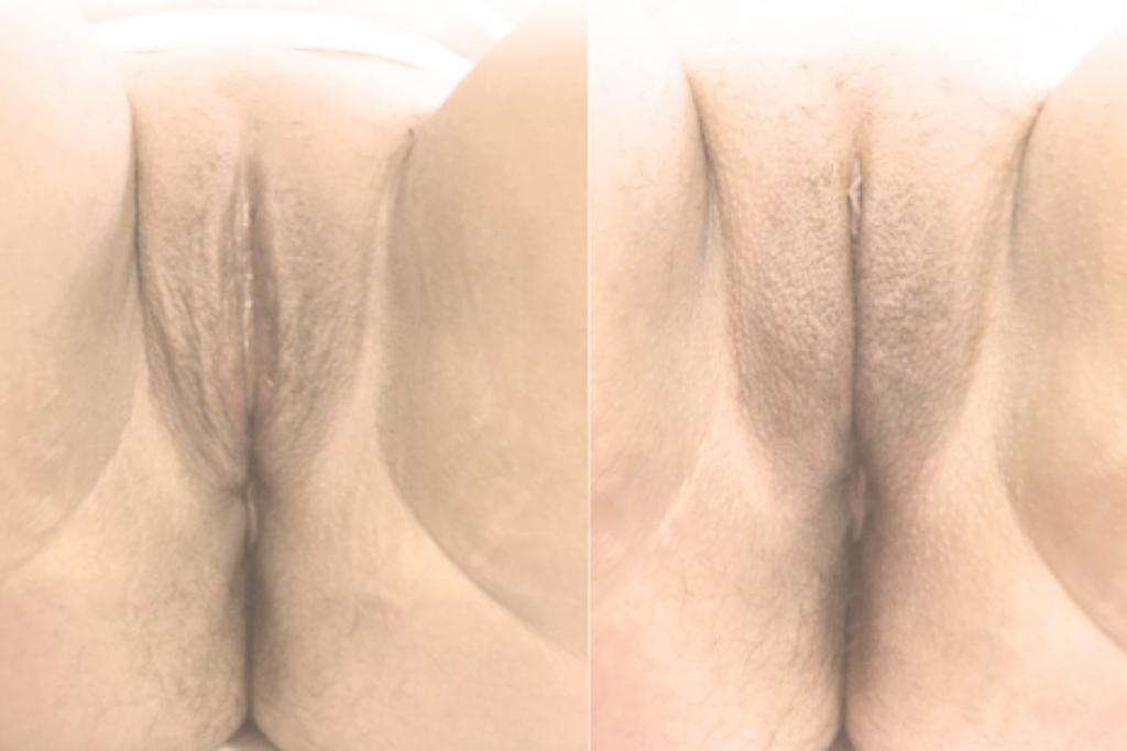 Augmentation des grandes lèvres