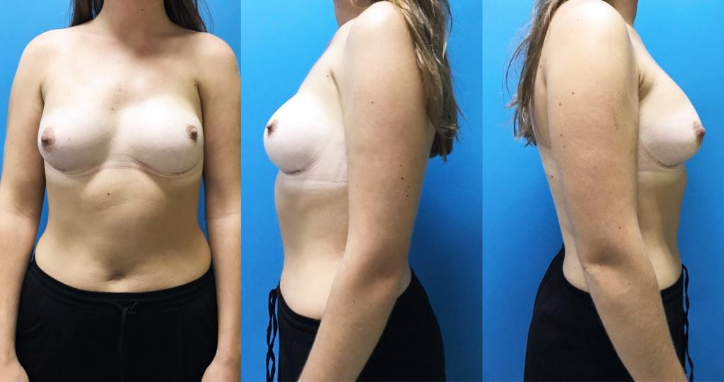 Augmentation mammaire par implants anatomiques