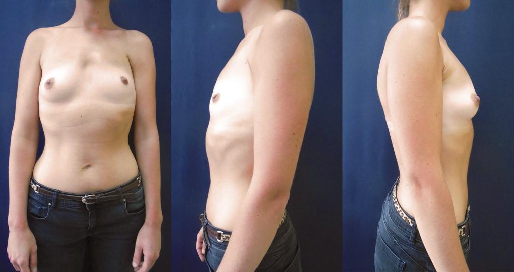 Asymétrie mammaire sur Syndrome de Poland