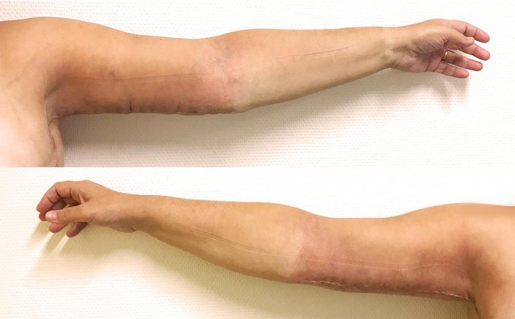 Dermolipectomie de la face interne des bras