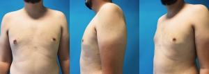 Lipoaspiration et résection glandulaire