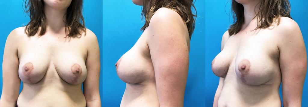 Mastopexie et mise en place d'implants ronds