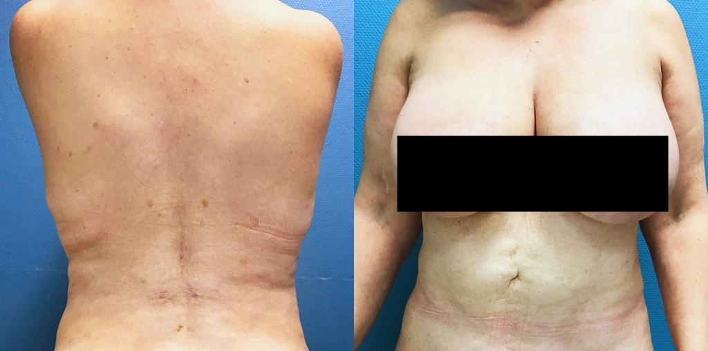 Lipoaspiration abdominale et des flancs